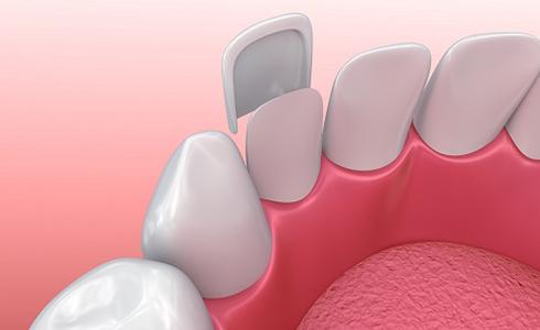 Images of Dental Veneers, Dr. Nikunj Raiyani, Lemoore with Hanford Family Dental Center