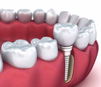 Dental implants, which are available near Lemoore, CA with the team at Hanford Family Dental Center