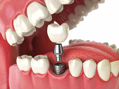 Tooth Implant Dental Concept, Dr. Nikunj Raiyani, Lemoore with Hanford Family Dental Center