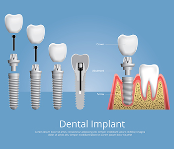 Best Dental Implants treatment for good dentist in Hanford, CA