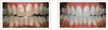 Smile Gallery Hanford - Teeth Whitening 02