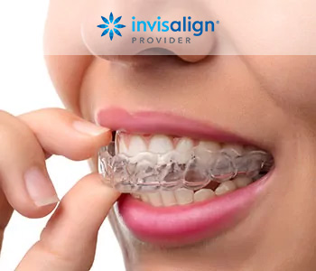 Best Dental Invisalign treatment from good dentist in Hanford, CA