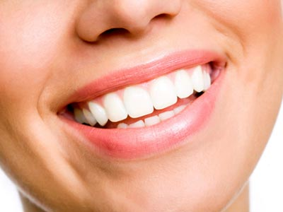Teeth veneers cost Hanford CA - Porcelain veneers cost