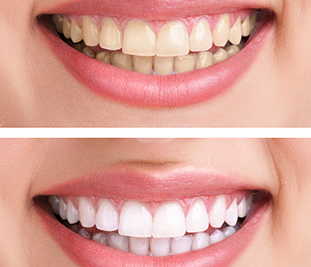 Best Teeth Whitening and a good dentist in Hanford, CA